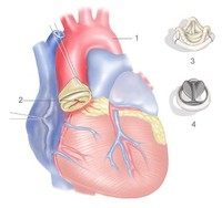 Reconstruction_of_aortic_valve